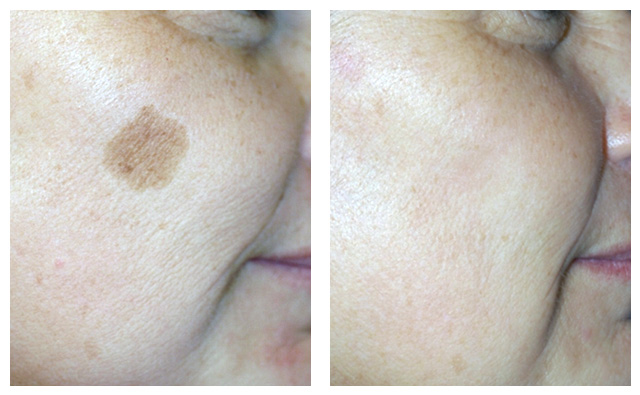 Age & Sun Spots Laser Treatment Before & After Pictures