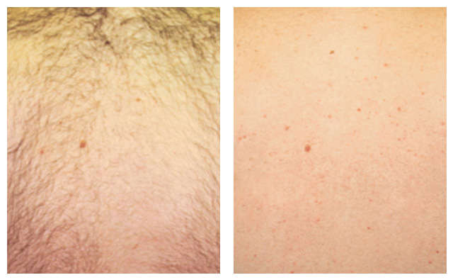 Dc facial hair laser removal washington