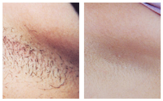 Laser Hair Removal Northern Virginia Laser Hair Removal