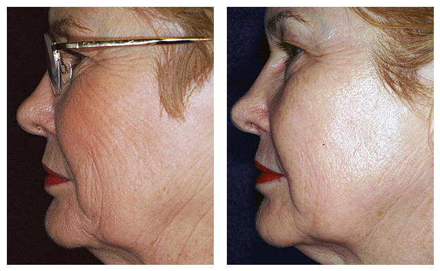 Laser Skin Tightening Before & After Photos